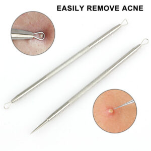 5 acne removal needles